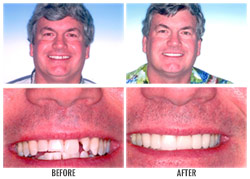 Teeth Whitening by Nakyoung Ju, D.D.S. in Boulder City, NV