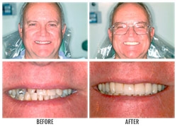 Dental Veneers by Nakyoung Ju, D.D.S. in Boulder City, NV