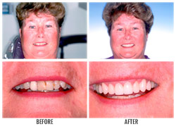 Dental Sealants by Nakyoung Ju, D.D.S. in Boulder City, NV