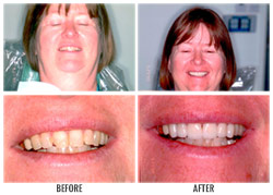 Dental Restoration by Nakyoung Ju, D.D.S. in Boulder City, NV