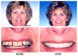 Dental Crowns by Nakyoung Ju, D.D.S. in Boulder City, NV