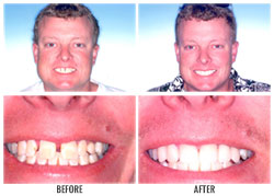 Dental Fillings by Nakyoung Ju, D.D.S. in Boulder City, NV