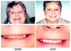 Smile restoration by Nakyoung Ju, D.D.S. in Boulder City, NV